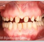 Vor dem Zahnersatz
